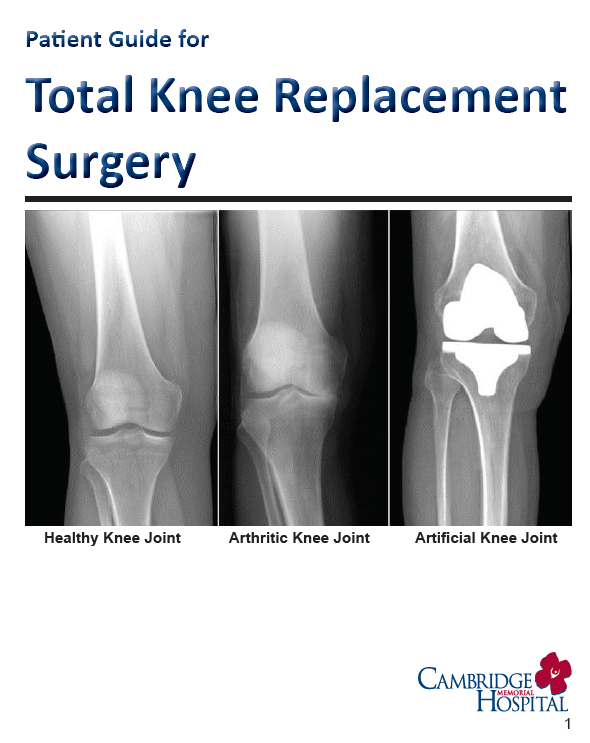 Patient Guide for Total Knee Replacement Surgery from Cambridge Memorial Hospital